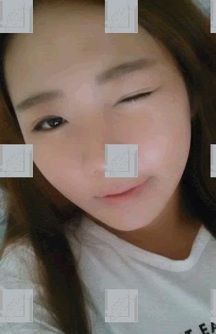 手术后1周 看!脸肿的非常严重吧。