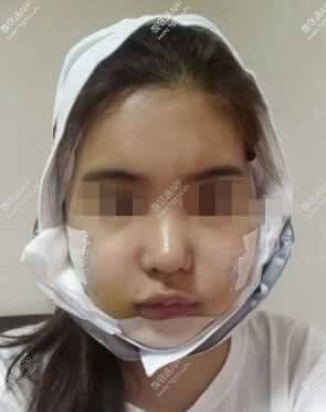 手术后的样子真的很吓人,感觉整个人都被束缚住了,还好有护士和医生和我说话,陪我度过了这段艰难的日子~~