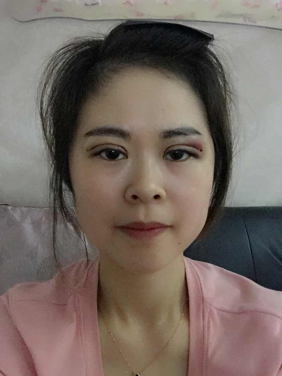 刚刚割完双眼皮之后的样子_做完双眼皮手术10天案例,双眼皮恢复中。_切开双眼皮_整形经历 ...