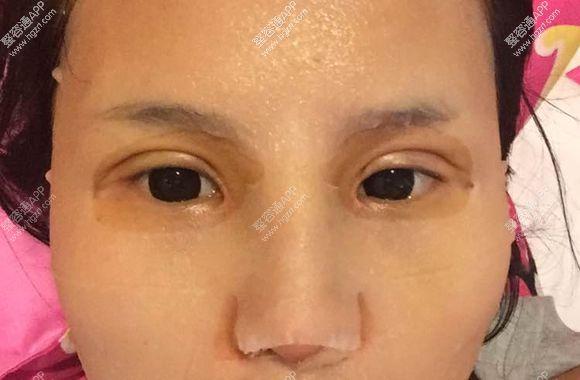 欧式假体隆鼻效果图片