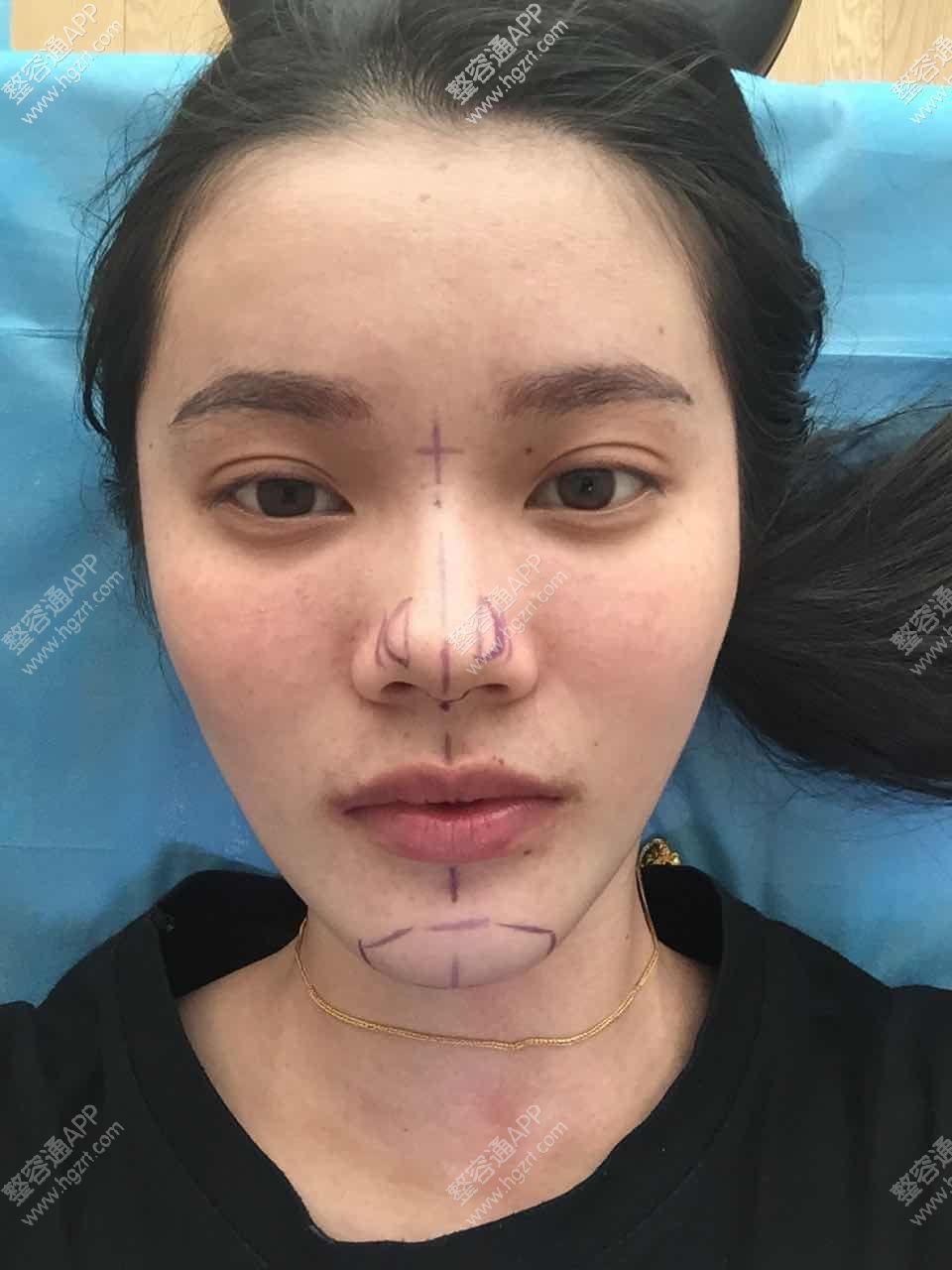 我是8,12号做的鼻子下巴。在济南第一张画_激光美白模拟_整形模拟_整容通app