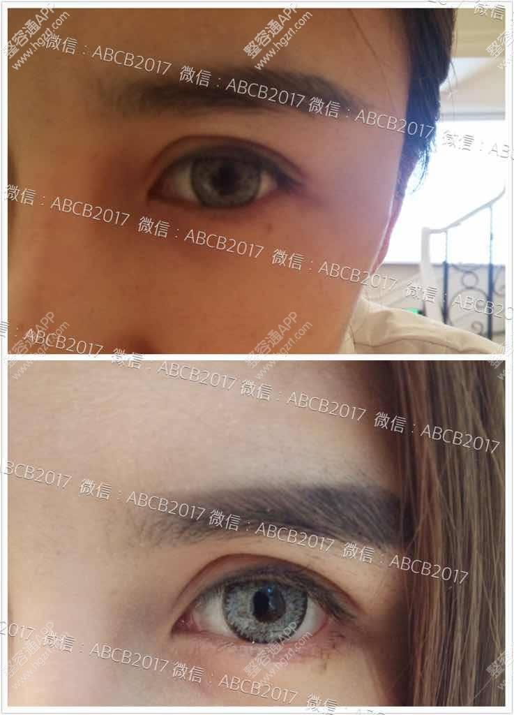 欧式双眼皮与下至手术