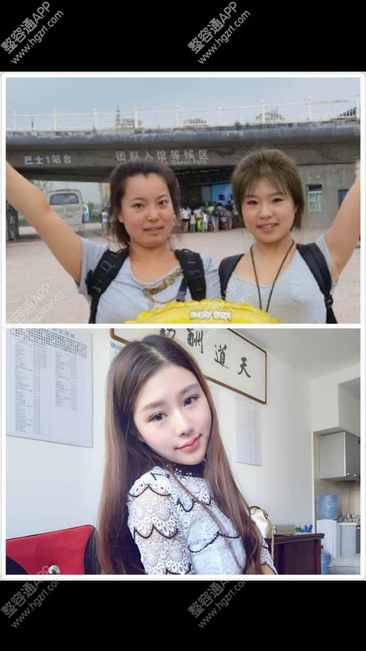 面部脂肪填充的恢复,以前的照片和后来的对_韩式双眼皮问答_整形问答_整容通app