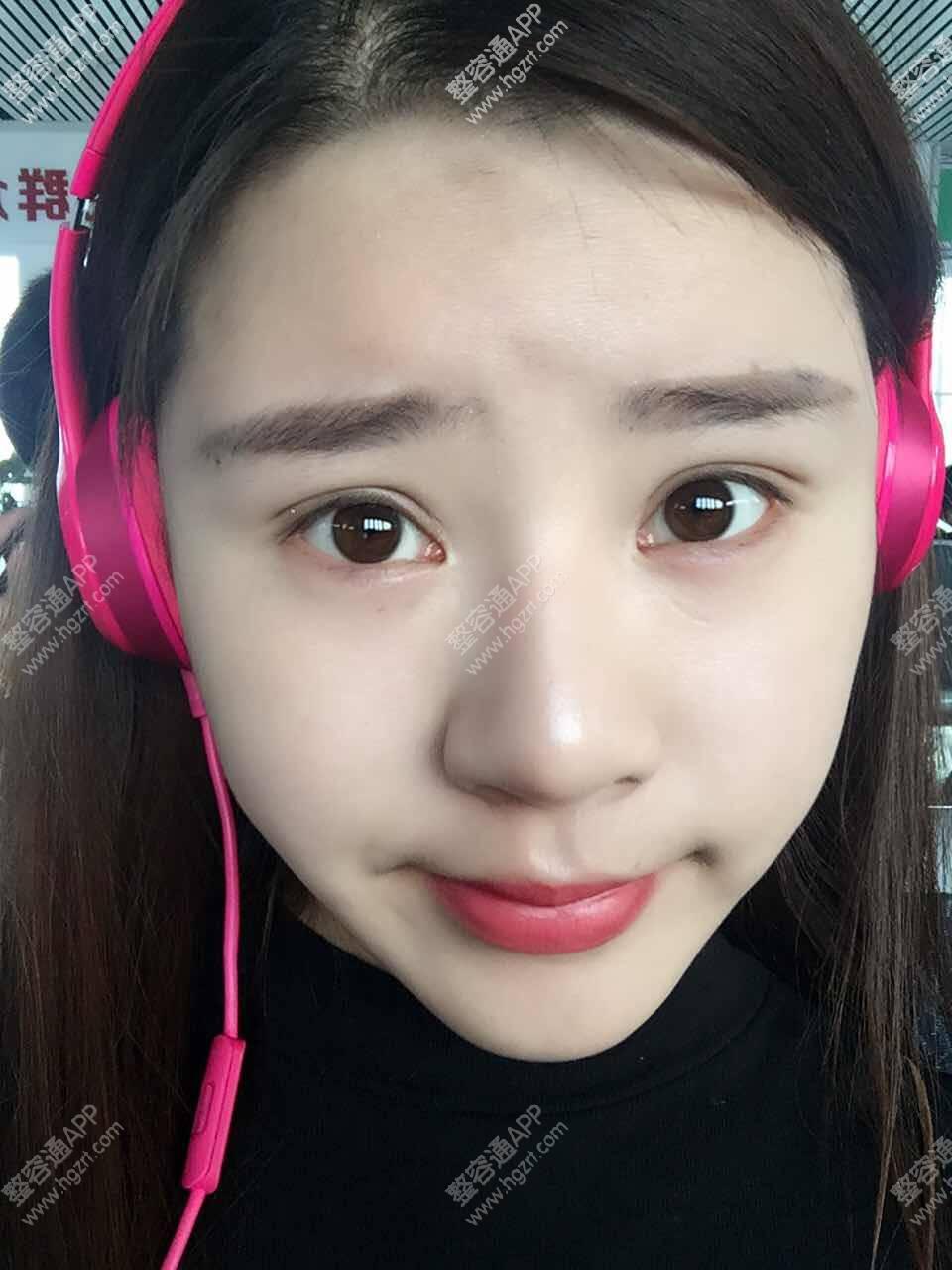 韩式双眼皮问答