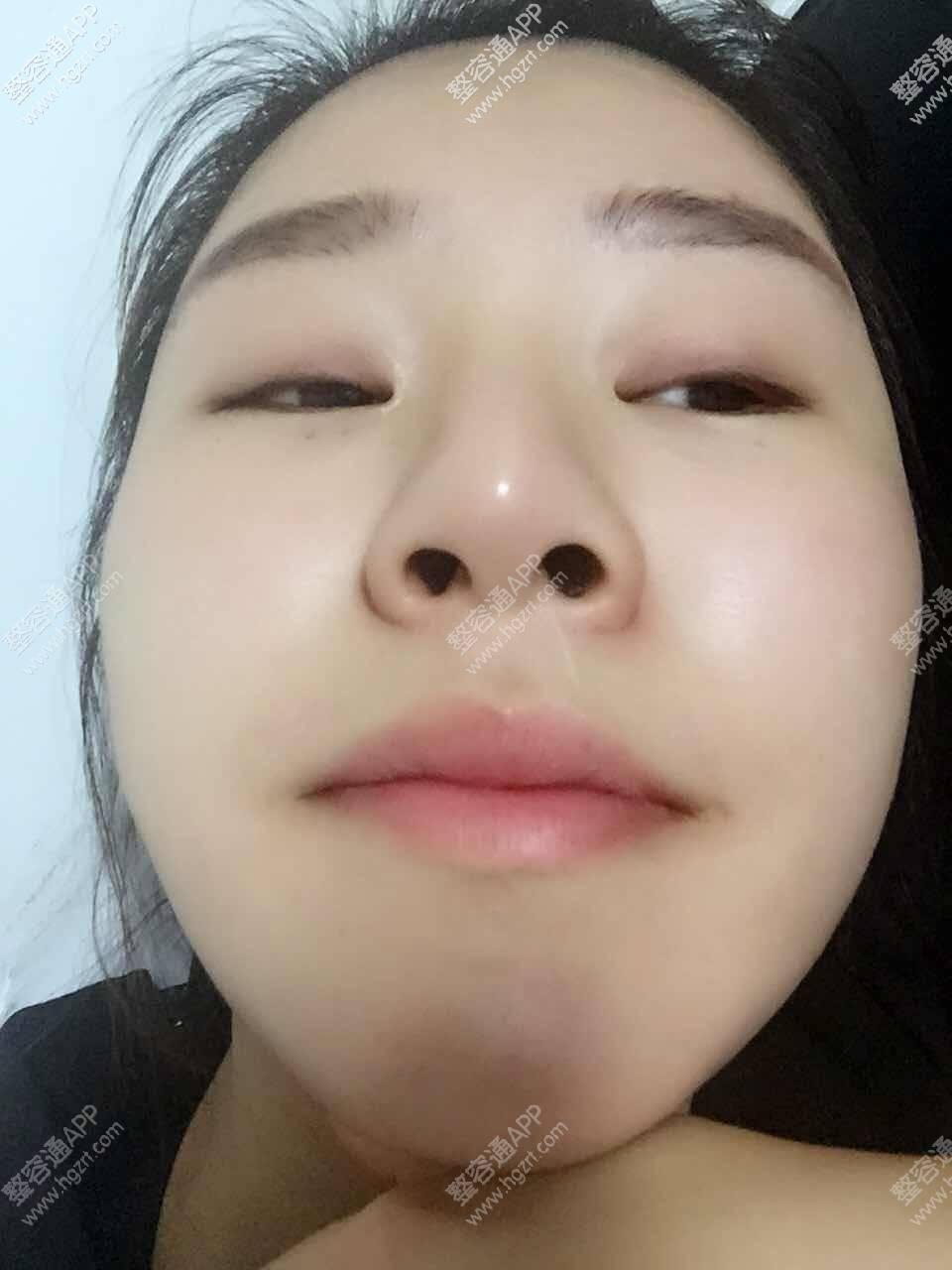 之前的鼻子 大鼻孔