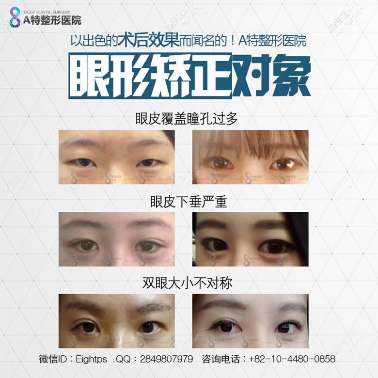 眼球萎缩图片_眼部肌肉萎缩怎么办,眼部肌肉缺乏张力就会导致眼睛看