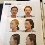 韩国新帝瑞娜颧骨整形多少钱 这些都是做过下...
