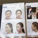 韩国新帝瑞娜郑钟必最擅长做什么手术