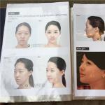 韩国新帝瑞娜整形外科开双眼皮大概多少钱