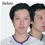 """割双眼皮有什么危险吗?小眼男做完眼睛直接变""""小鲜肉"""""""