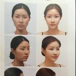 韩国新帝瑞娜整形外科上睑下垂手术越早做越好吗?