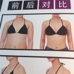 韩国珠儿丽整形外科假体隆胸多久恢复自然?