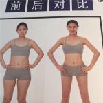 韩国珠儿丽整形外科腰部吸脂要多久才能恢复?