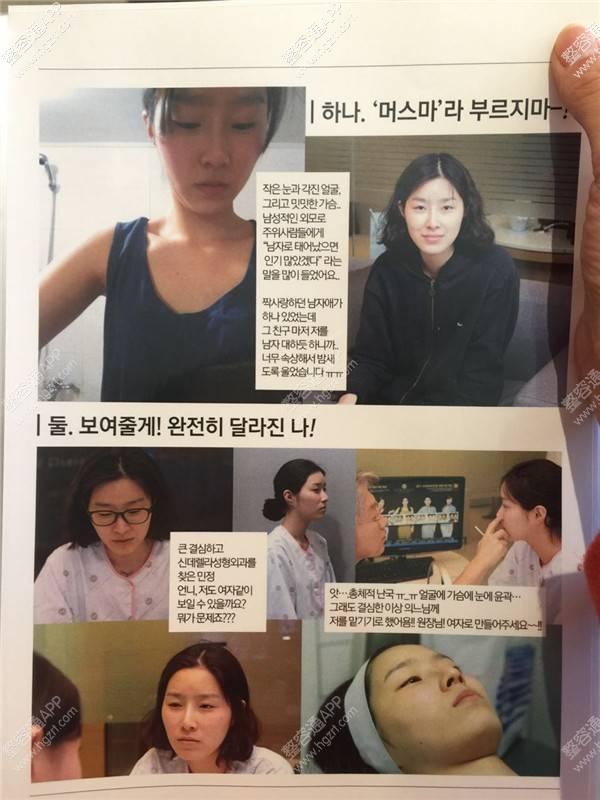 韩国新帝瑞娜整形外科有鼻炎可以做假体隆鼻吗?