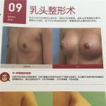 韩国珠儿丽整形外科乳头内陷矫正手术会有副作用吗?