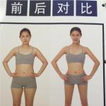 韩国珠儿丽整形外科全身吸脂会有危险吗?