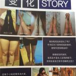 韩国珠儿丽整形外科腿部吸脂安全吗?