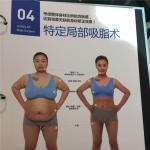韩国珠儿丽整形外科全身吸脂做几次才有效?