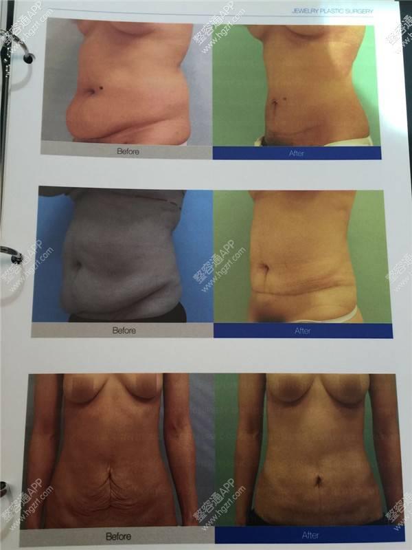 韩国珠儿丽整形外科吸脂瘦小肚腩会反弹吗?