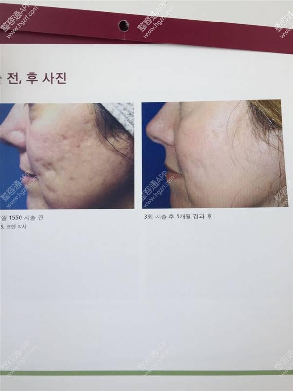 韩国主恩整容外科面部除疤手术多少钱?