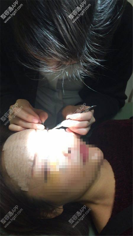 韩国新帝瑞娜整形外科韩式双眼皮什么时候拆_韩国新帝瑞娜整形外科