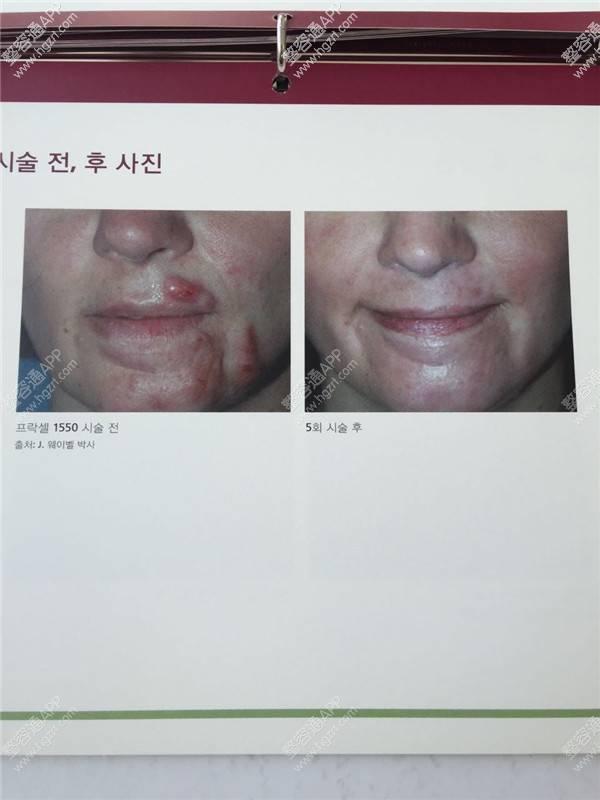 韩国主恩整容外科疤痕有什么好的办法去除?