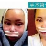重庆女孩花百万整容成了baby,我不能信!