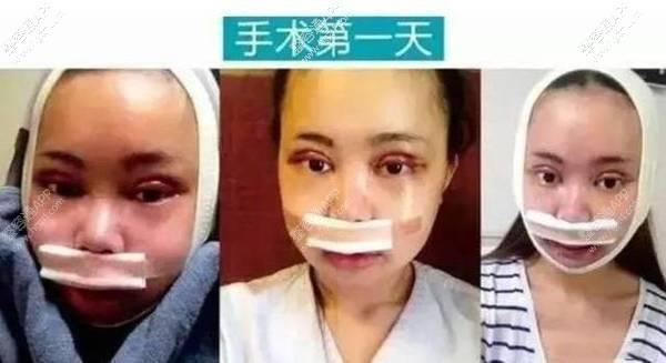 """这位重庆女子名叫吴玉青为了这张脸花费百万,总算达到了自个想要的作用。并且还自曝自个的整容日记和心得……被人称为""""重庆版Angelababy""""。  根据她自曝,她做了双眼皮,表里眼角,脸部脂肪填充,磨颧骨,眼鼻整形等等多达十多项的手术,总共花费了超百万,更是曝光了自个的整容前的照片!"""