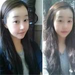 韩国轮廓整形可靠吗?做了轮廓+鼻子整形术后,朋友们都说我是明星脸!