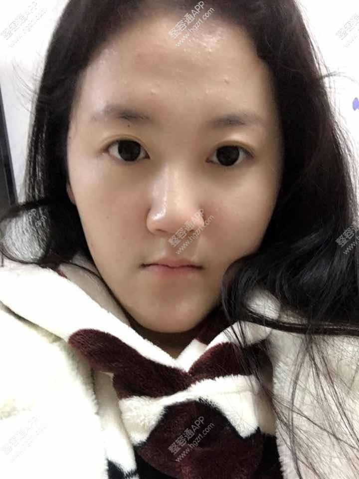 韩式无痕双眼皮效果图,这下看着对称美腻了