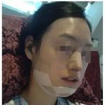 下颌角整形恢复过程是怎样的?美小护拯救下颌角手记,中韩磨骨特色再度曝光!