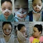 一般面部提升手术要多少钱?案例:6个月无缝记录我的小脸成型记!