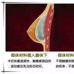 假体隆胸术后能不能运动?隆胸假体10年期满,你有做过检查吗?