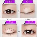 割双眼皮后一般要注意什么?网曝做双眼皮用牙签测量,这样的手术你敢尝试吗?