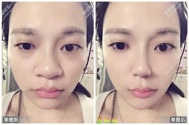 在韩国隆鼻要多少钱_整鼻子价格 - www.iaieiw.com