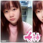 韩式假体隆鼻效果打造完美鼻型