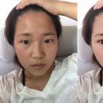 给姑娘模拟的双眼皮效果,看来姑娘是很适合做双眼皮的。