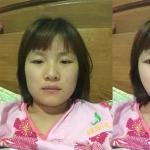 下颌角手术效果模拟图,塑造你的完美脸型。