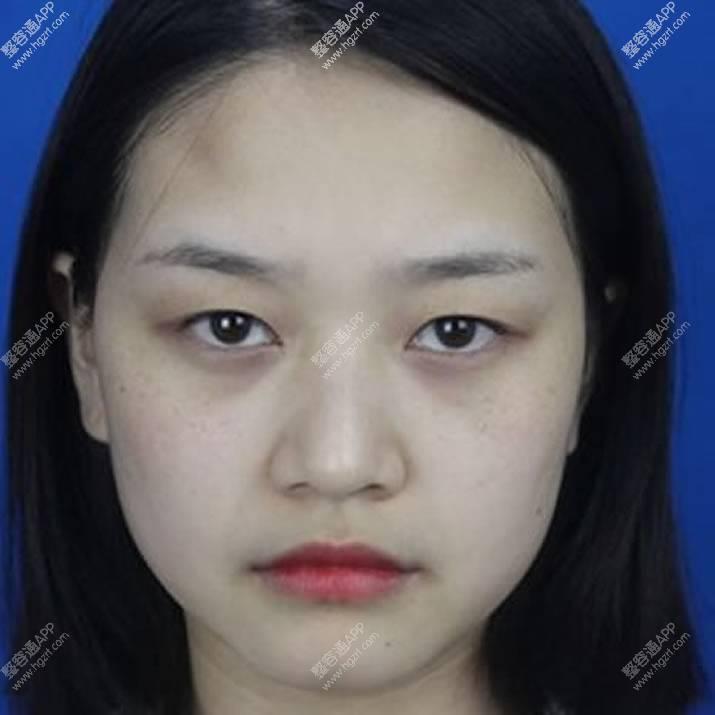 双眼皮手术+隆鼻