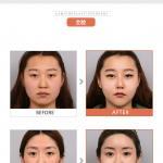 韩国然美之整形医院整容案例?整形前后对比图展示