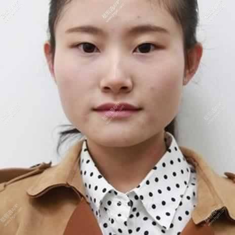 下颌角整形手术恢复图
