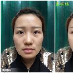 自体面部脂肪移植模拟对比图,自体脂肪的年轻化作用就是这样的