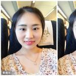 吸脂瘦脸的模拟效果怎么样?还模拟做了发际线调整