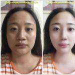 缩鼻手术加面部综合整形假想图