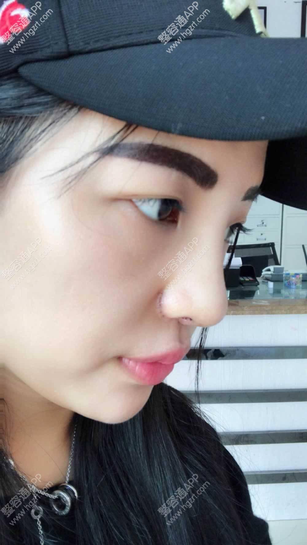 术后一个月,鼻子眉毛都恢复的差不多了,属于我的颜值又回来了