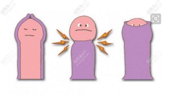 一般包皮手术