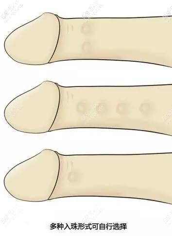 硅胶植入增粗阴茎