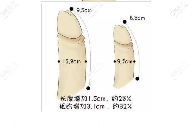 非手术方式有玻尿酸注射、人体真皮粉末注射