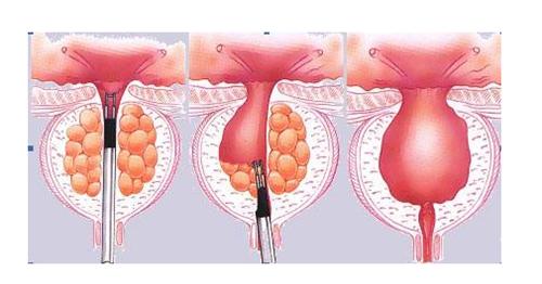 4、经尿道等离子前列腺剜除术(TUKEP):将前列腺于包膜内切除