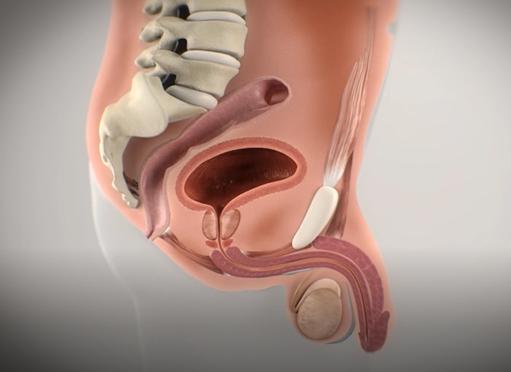 无创前列腺肥大环缩小手术是韩国试探他男科医院独创的前列腺治疗手术